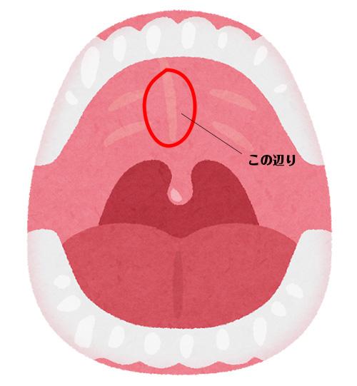 口内の上顎(硬口蓋)