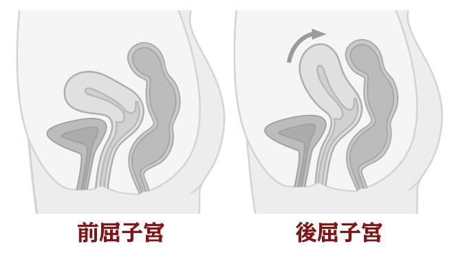 前屈子宮と後屈子宮の違い